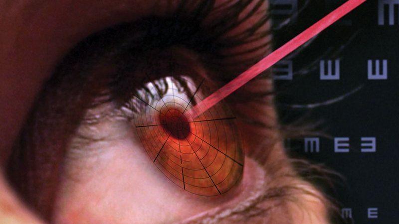 лазер в глаза