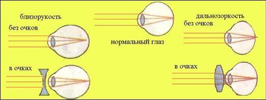 схема глаза при близорукости и дальнозоркости