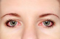 Глазные капли от конъюнктивита для детей и взрослых