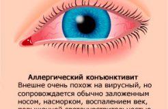 Лечение аллергического конъюнктивита, его причины и симптомы