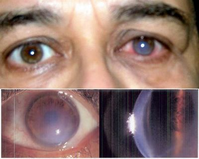 выпуклый глаз