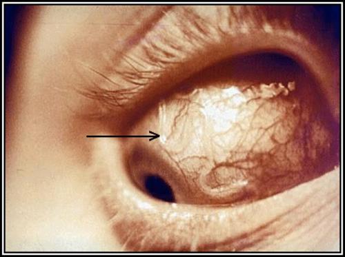 гельминт в глазу