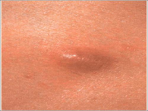 гельминт на теле