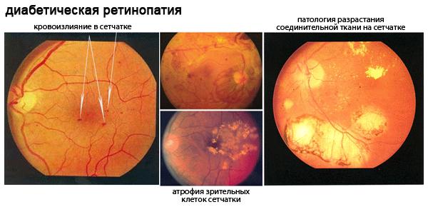 Диабетическая ретинопатия: причины, симптомы и лечение