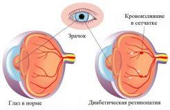 Лечение диабетической ретинопатии, ее причины и симптомы
