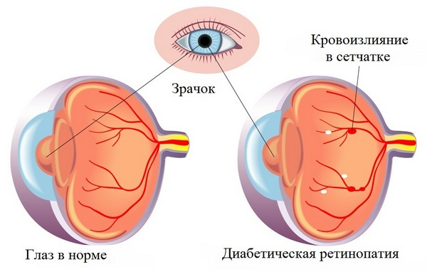 схема глаза при диабетической ретинопатия