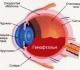 Лечение гемофтальма глаза у взрослых и детей, ее причины