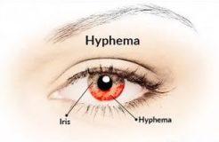 Лечение гифемы глаза, ее причины и симптомы