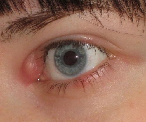 Фурункул возле глаза