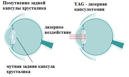 схема хрусталика глаза при катаракте