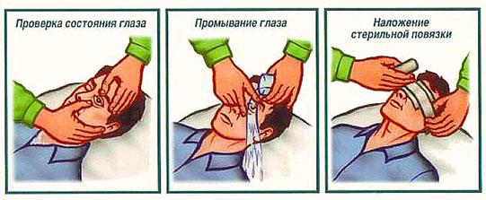 первая помощь при травме глаза