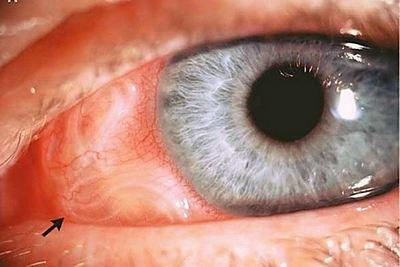 онхоцеркоз в глазу