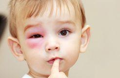 Травмы век: почему возникают, как и чем лечат