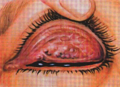 Трахома на глазу