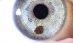 Лечения невуса хориоидеи глаза, его симптомы и причины появления