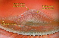 Симптомы и лечение ретиношизиса сетчатки глаза