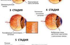 Лечение ретинопатии недоношенных детей, ее симптомы