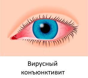 Вирусный кератоконъюнктивит
