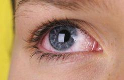 Причины воспаления роговицы глаза и способы ее лечения