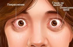 Лечение эндокринной офтальмопатии, ее симптомы и причины