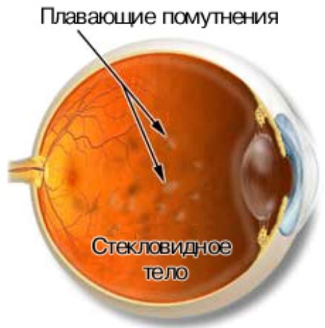 эндофтальмит