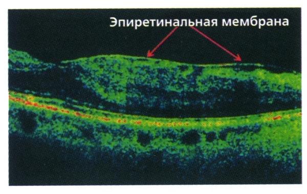 эпиретинальная мембрана