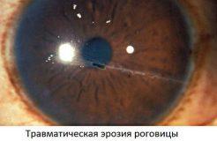 Лечение эрозии роговицы глаза, ее причины