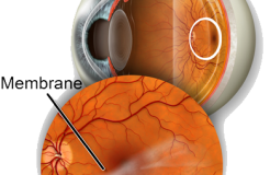 Лечение эпиретинальной мембраны глаза, ее стадии и симптомы