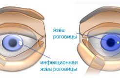 Лечение язвы роговицы глаза у человека, ее причины