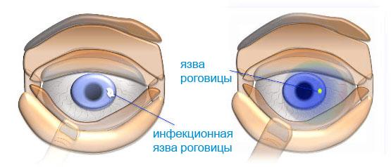 язва роговицы глаза