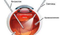 Проведение витрэктомии глаза, показания и реабилитация