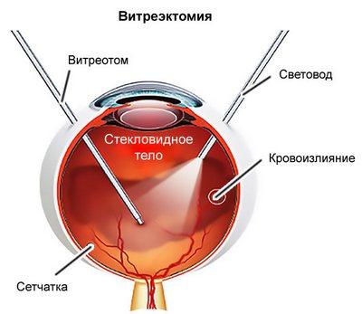 схема витрэктомии глаза