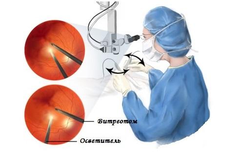 проведение витрэктомии глаза