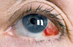 Что такое гемофтальм глаза, его разновидности и этапы развития