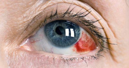 гемофтальма глаза