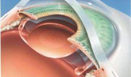 Операция по замене хрусталика глаза, показания и противопоказания